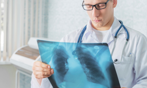 How the Diagnosing of Lung Diseases Can Be Improved